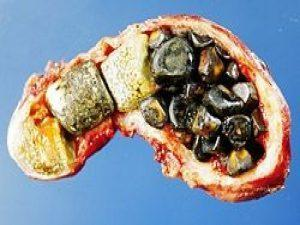 Камни в желчном пузыре: симптомы, причины и лечение