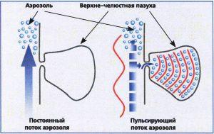 схема лечения гайморита