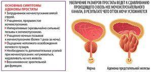 Лечение, симптомы и профилактика бактериального простатита