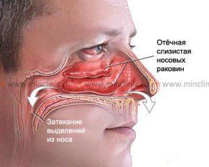 В чем разница: синусит и гайморит. протекание болезни, причины, симптомы и особенности лечения