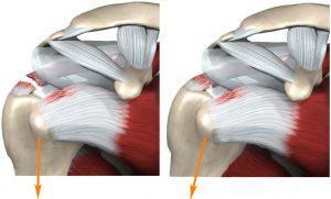 Лечение повреждений суставов