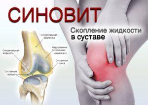 Причины воспаления суставов и лечение народными средствами