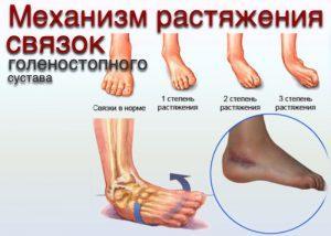чем лечить суставы ног