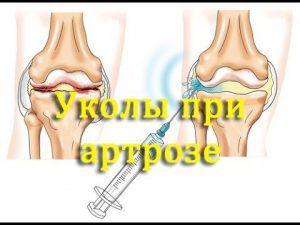 Артроз плечевого сустава лечение медикаментами, особенности