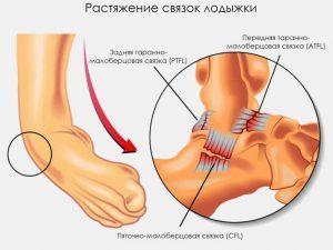 Растяжение связок суставов лечение народными средствами
