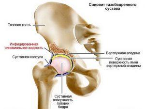 синовит сустава лечение