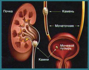 камни в мочевом пузыре лечение