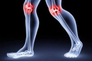 Обзор самых эффективных методов лечения артрита суставов