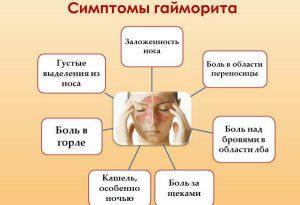 Двухсторонний гайморит - лечение, симптомы и ТОП 5 причин - Горлонос.ру
