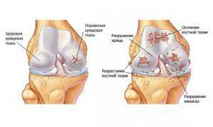 Лечение гонартроза коленных суставов