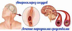 Народные средства при ишемическом инсульте