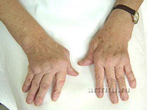 Лечение воспаления суставов пальцев рук народными средствами сколько суставов и костей в кисти