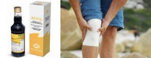 Артроз коленного сустава: лечение народными средствами и препаратами